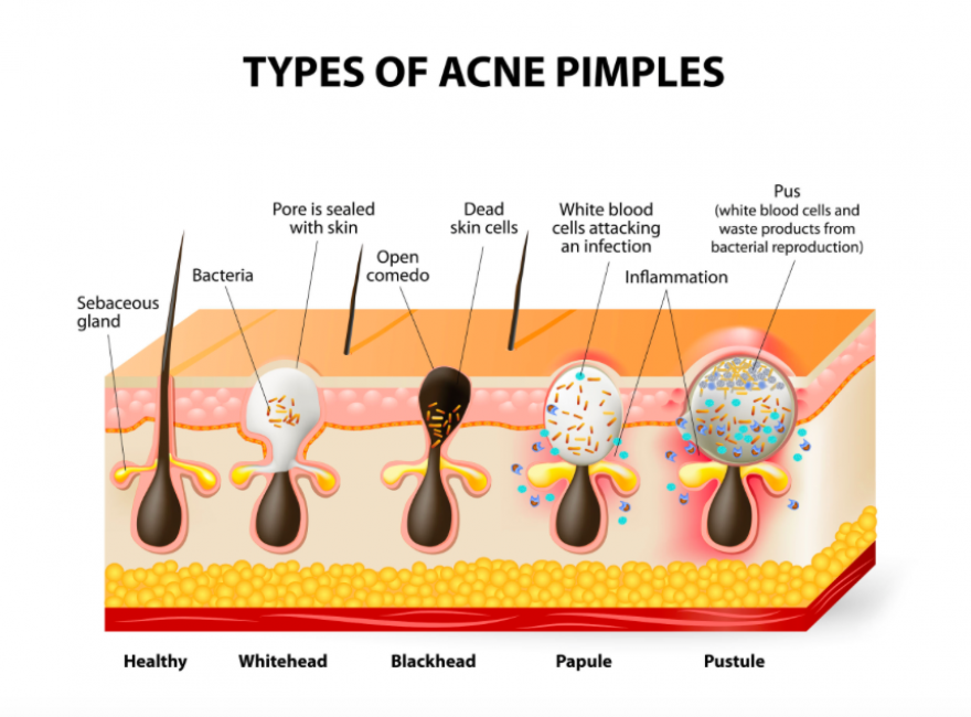 8 Problem Areas: What's Causing your Acne?