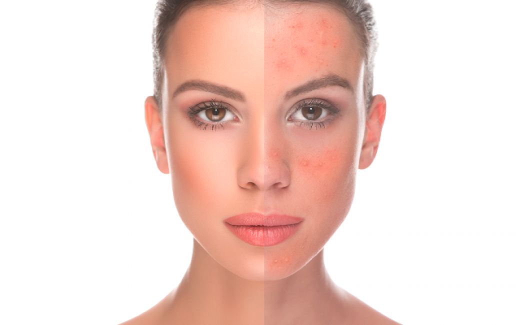 Woman's face showing the left half clear and the right side with redness and irritation